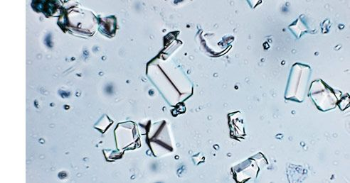 What Is Protein Crystallization?